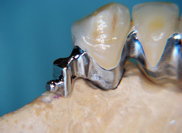 Часть микрозамка крепится на коронку, которая одевается на опорный зуб.