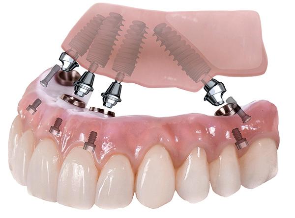 На картинке показана схема протезирования зубов по технологии All-on-4.