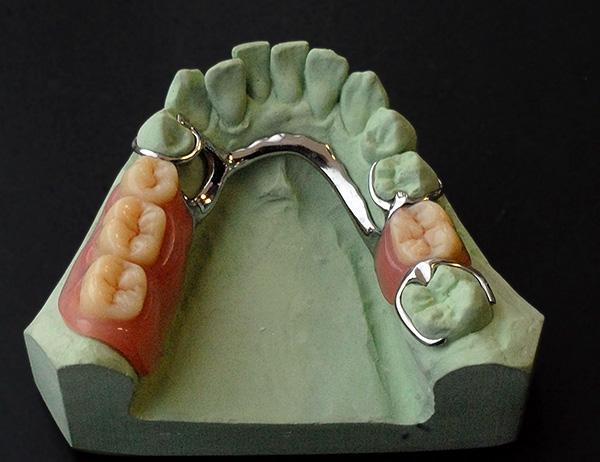 В целом изготовление бюгельного протеза - сложная многоэтапная процедура, которая обычно длится от 2 до 4 недель.