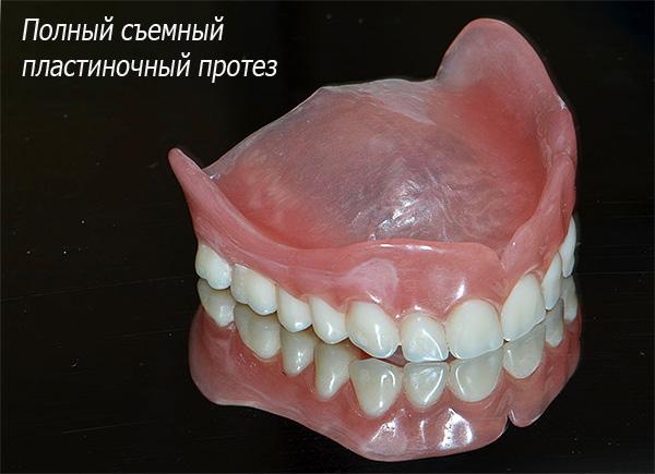 На фотографии показан полный съемный пластинчатый протез - он удерживается в полости рта за счет присасывания к деснам и небу.