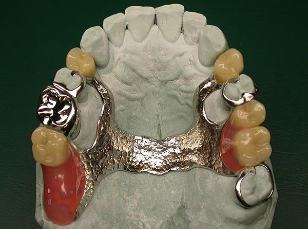 Бюгельный протез крепится в полости рта значительно надежнее и прочнее, чем пластинчатый.