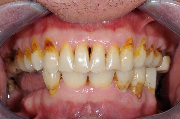 Возможность надежного крепления бюгельного протеза в значительной мере определяется состоянием полости рта пациента.