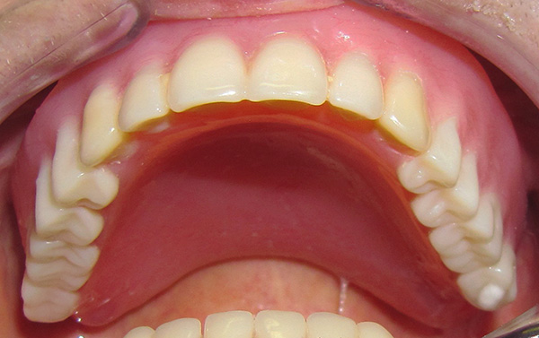 А так выглядит верхняя челюсть после установки на нее полного съемного пластиночного протеза.