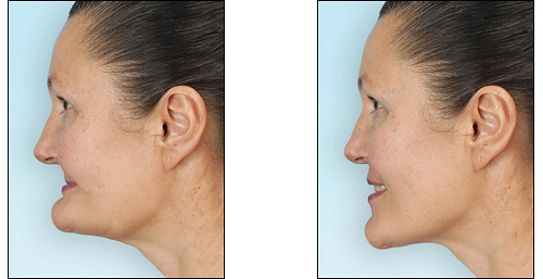 Так меняется лицо пациента при использовании полных зубных протезов на обе челюсти.
