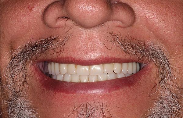 Когда требуется максимальный комфорт и эстетика, а цена не критична, тогда имеет смысл использовать условно-съемные зубные протезы с креплением на имплантах.