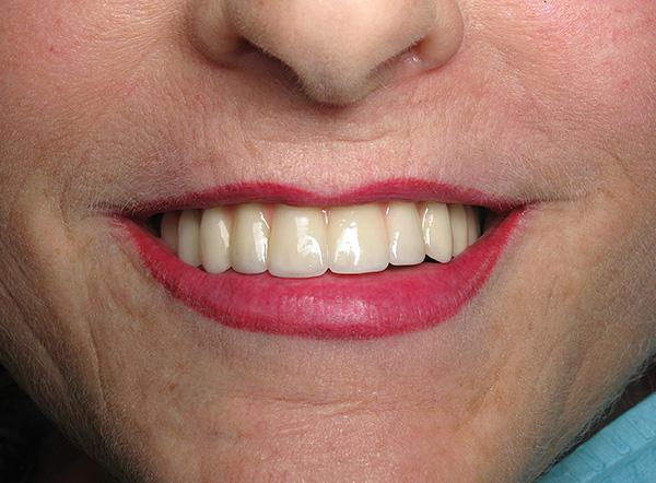 На фото показан результат протезирования с использованием условно-съемных протезов на имплантах.