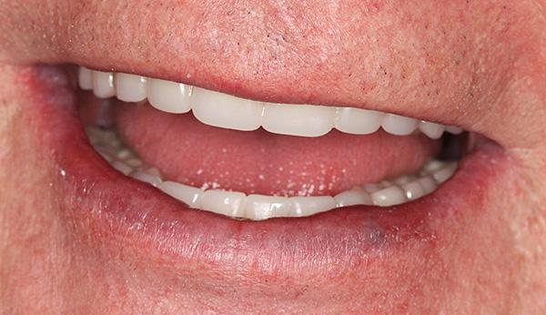Важно правильно ухаживать за зубным протезом, чтобы он служил долго и не терял эстетических свойств.