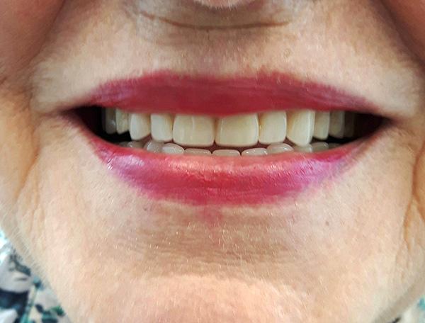 На фотографии показан результат протезирования с использованием полных зубных протезов (как на верхней, так и на нижней челюсти).