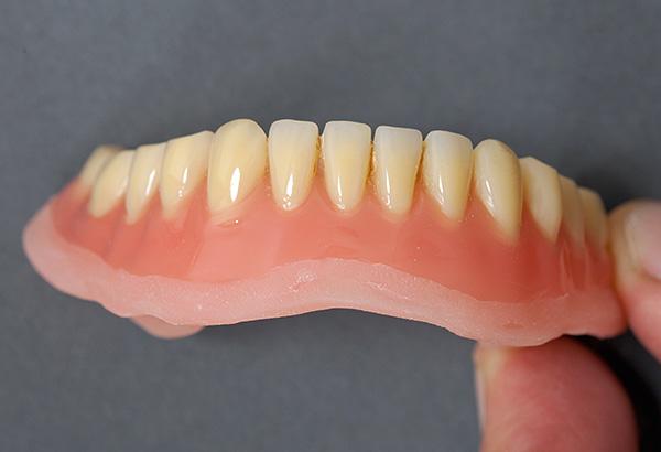 Даже сильно потемневший протез можно привести практически в исходное состояние в зуботехнической лаборатории.