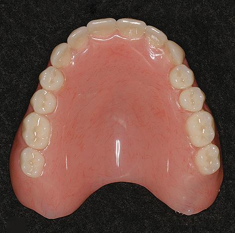 Протезы из жесткой акриловой пластмассы остаются сегодня наиболее дешевым вариантом протезирования при полном отсутствии зубов во рту.