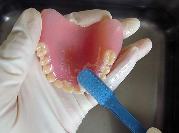 Поговорим о том, как нужно правильно ухаживать за съемными зубными протезами, чтобы они служили долгое время и не создавали лишних проблем...