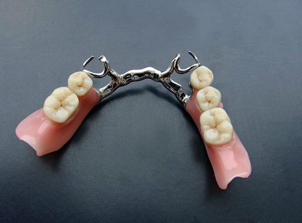 Следует хотя бы раз в год показывать свой протез стоматологу-ортопеду...