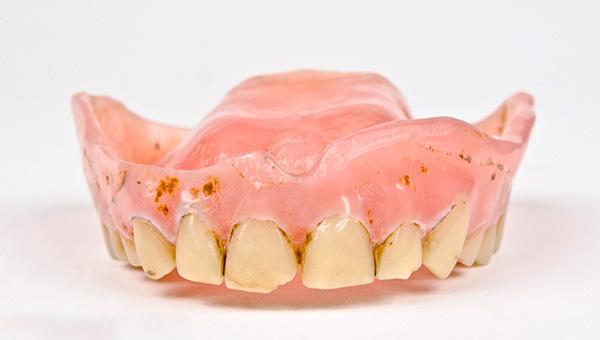 На фото показан пример протеза, уровень гигиены которого оставляет желать лучшего.