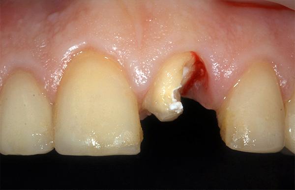 Клинический случай: передний зуб сломан вследствие механической травмы.