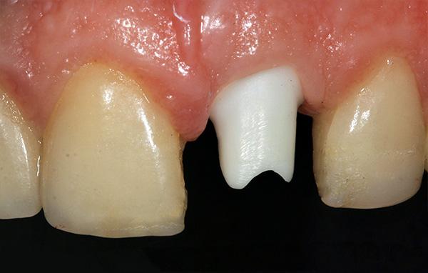 На имплант установлен индивидуальный абатмент, что позволит в дальнейшем получить максимально высокую эстетику.