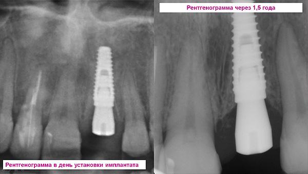Рентгеновский контроль - снимки сразу после установки импланта и через 1,5 года.