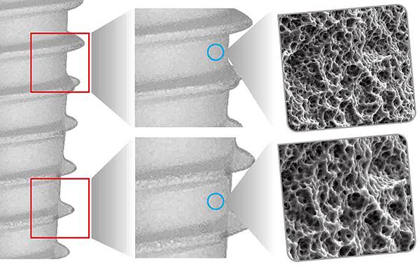 Поверхность имплантата пористая - это облегчает процесс остеоинтеграции.