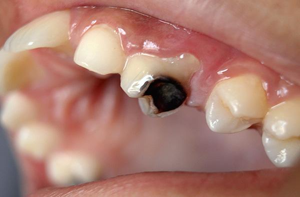 На стоимость лечения зуба, разрушенного кариесом, влияет сразу множество факторов, которые мы дальше и рассмотрим...