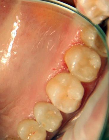 Неподготовленный человек далеко не всегда может самостоятельно разобраться, какой зуб требует лечения - этим и может воспользоваться не чистый на руку врач.
