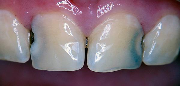 Зачастую именно между зубами пища не вычищается до конца - здесь и начинается развитие кариеса.