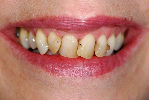 Стоимость лечения передних зубов, как правило, заметно выше, так как здесь предъявляются повышенные требования к эстетике.