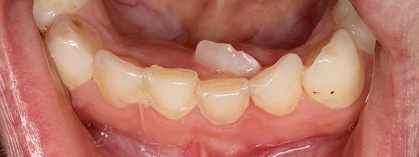 Сверхкомплектный зуб у ребенка