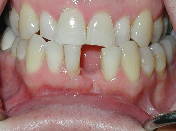 Ситуация до лечения - отсутствует передний зуб снизу.