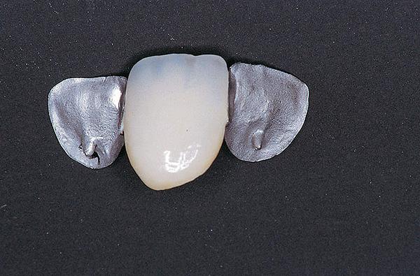 Следует учитывать, что такую конструкцию целесообразно применять лишь для временного устранения дефекта зубного ряда.