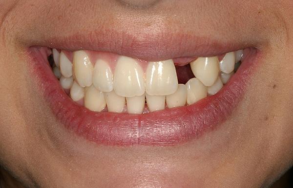 Потеря даже одного зуба без своевременно проведенного протезирования может весьма негативно сказаться на состоянии всей зубочелюстной системы.
