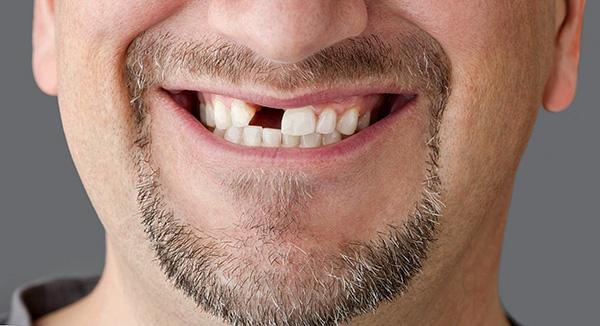 Цены на протезирование зуба могут отличаться весьма значительно, иногда в несколько раз, определяясь целым рядом факторов...