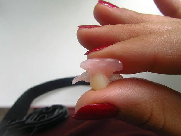 Зубной протез-бабочка