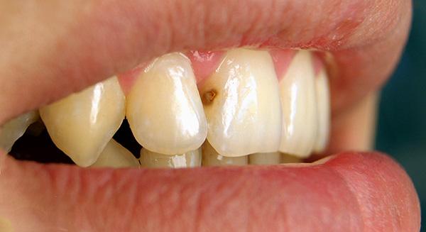Средний кариес на переднем зубе