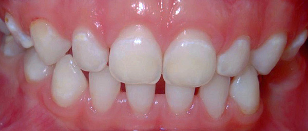 Белые пятна - это участки деминерализации зубной эмали.