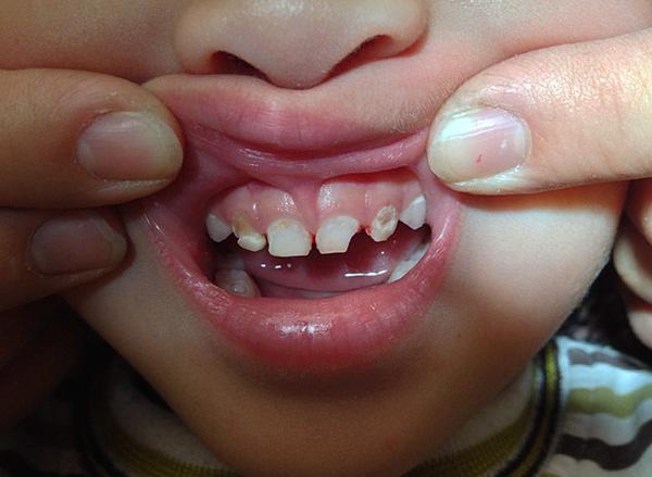 О способах снятия зубной боли у детей...