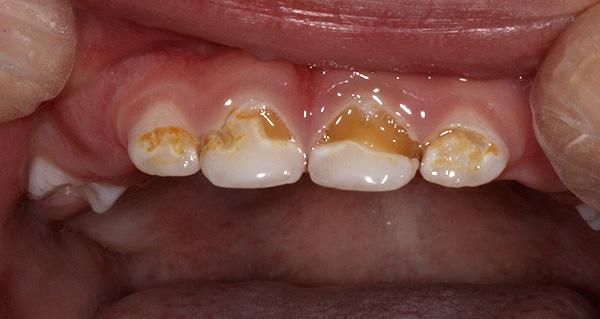 При глубоком повреждении эмали сильную зубную боль могут вызывать самые разные раздражители: химические, температурные и механические.