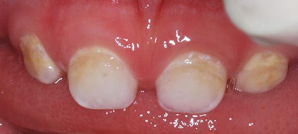 Кариес молочных зубов на этапе белого (мелового) пятна.