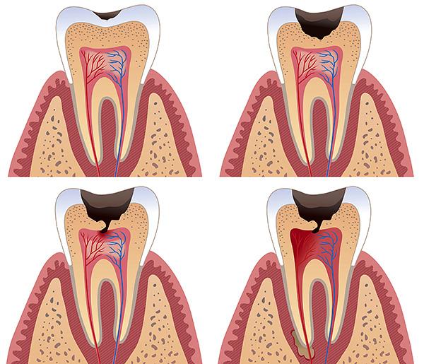 Чем дольше затягивать визит к стоматологу, тем более сложное и длительное потребуется лечение.