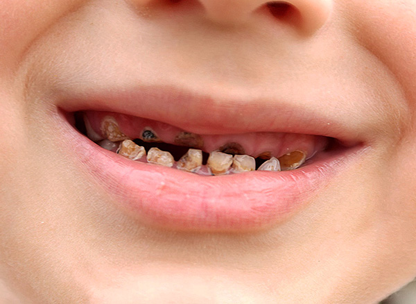 Если не следить за состоянием зубов у малыша, у него могут формироваться психологические комплексы, которые иногда сохраняются на долгие годы.
