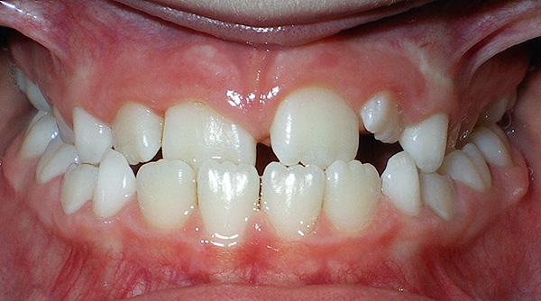 Нарушение прикуса может происходить, в том числе, из-за преждевременной потери молочных зубов, разрушенных кариесом.