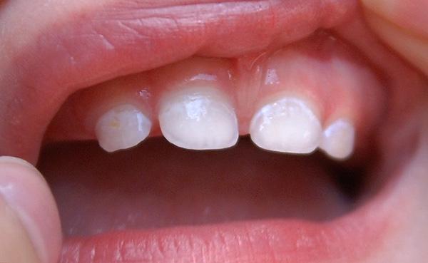 Деминерализация зубной эмали на начальных этапах проявляет себя такими вот белыми пятнами.