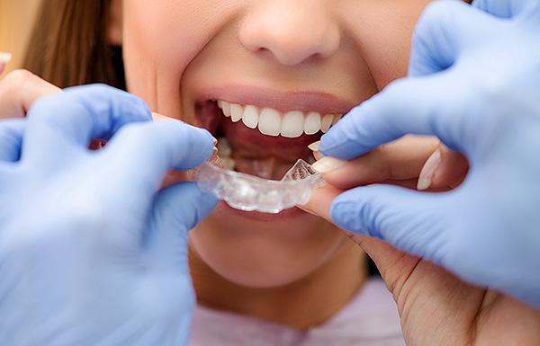 Поговорим об исправлении неправильного прикуса с помощью различных ортодонтических кап...