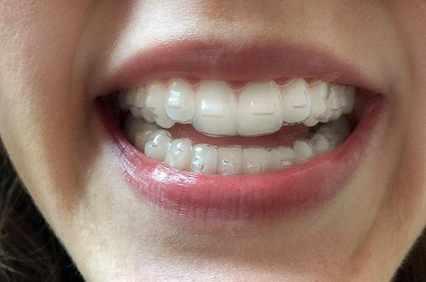Элайнеры на зубах хотя и заметны, но не сильно бросаются в глаза.