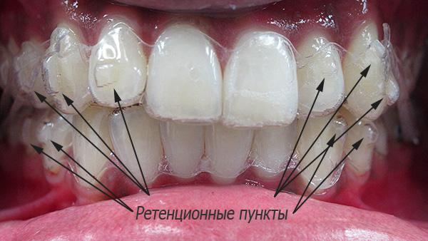 Ретенционные пункты на зубах
