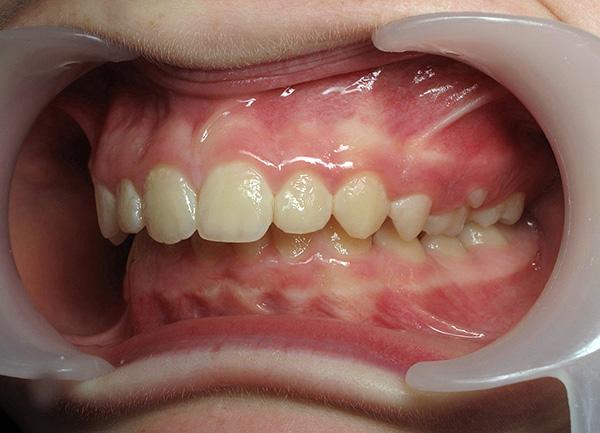 Неправильное положение челюстей друг относительно друга может развиваться, в том числе, из-за проблем с ВНЧС.