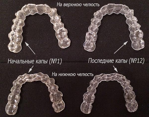 В каждой последующей капе дефект зубного ряда все менее выражен, а последний набор соответствует итоговому положению зубов после лечения.