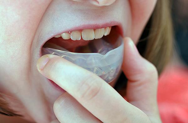 Ортодонтические трейнеры применяются не только у детей, но ими также пользуются взрослые.