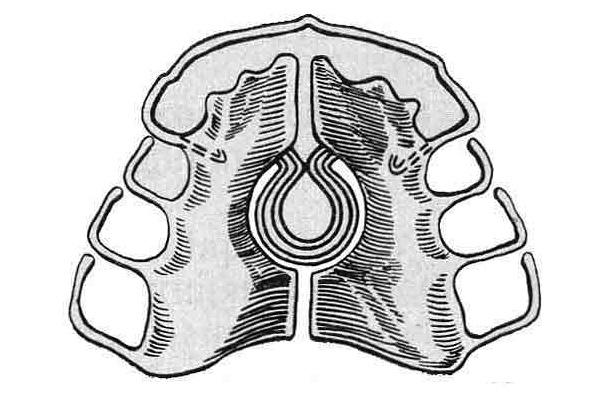 Пластинка с пружинами для расширения верхней челюсти.