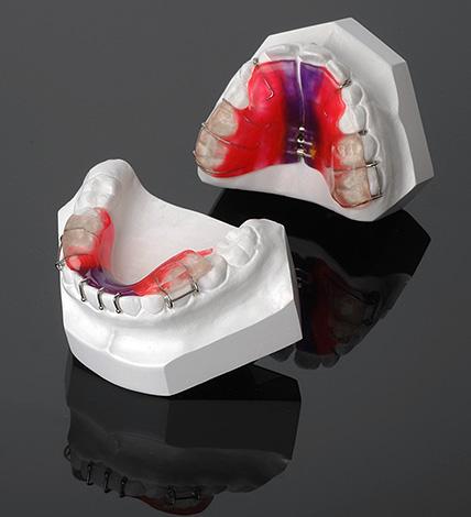 Двухчелюстной ортодонтический аппарат «Твин-блок»