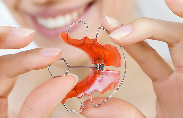 Назубные ортодонтические аппараты имеют винт, позволяющий расширять челюсть.