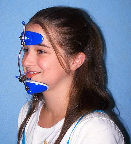 Лицевая ортодонтическая маска
